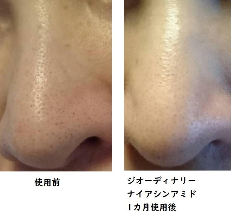 ジオーディナリーナイアシンアミド 小鼻の毛穴黒ずみに使用したビフォーアフター