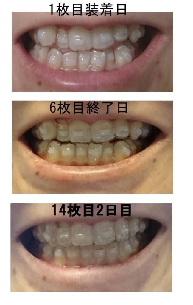 ピュアリオ歯科での経過感想ブログ
