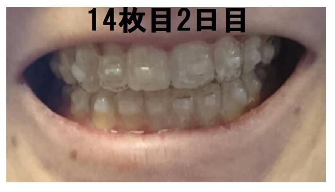 ピュアリオ歯科感想ブログ